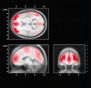 "To measure extremist organizations' influence, the researchers use functional MRI to see which brain circuits ""light up"" when survey participants watch recruitment videos. (Photo and image courtesy of The Chicago Project on Security and Terrorism)"